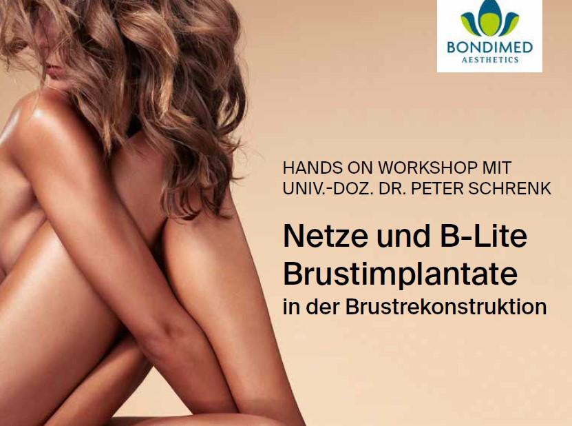 Workshop Netze und B-Lite 10.02.2020